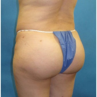 35-44 year old woman treated with Brazilian Butt Lift (fat grafting to buttocks) after 2329139