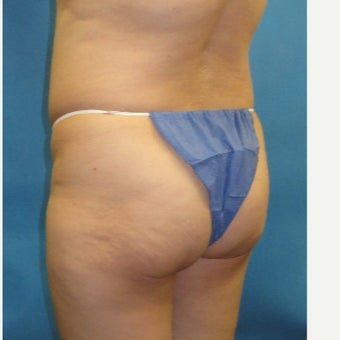 35-44 year old woman treated with Brazilian Butt Lift (fat grafting to buttocks) before 2329139