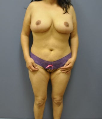 Hourglass Tummy Tuck by Dr. Wilberto Cortes before 568475