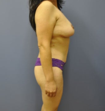 Hourglass Tummy Tuck by Dr. Wilberto Cortes 568475