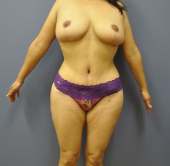 Hourglass Tummy Tuck by Dr. Wilberto Cortes after 568475