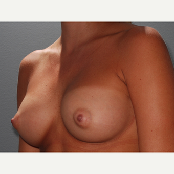 30 y/o Transaxillary Submuscular Breast Augmentation after 3066559