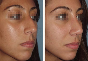 Female Primary Rhinoplasty