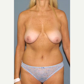 45-54 year old woman treated with Breast Lift before 3454625