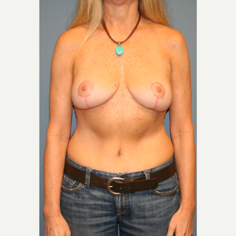 45-54 year old woman treated with Breast Lift after 3454625