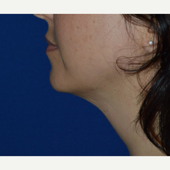 25-34 year old woman treated with Chin Liposuction after 3641420