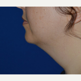 25-34 year old woman treated with Chin Liposuction before 3641420