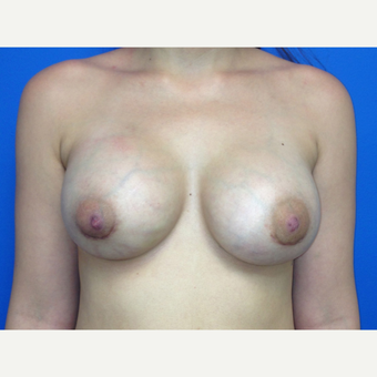 Breast Augmentation after 3743760