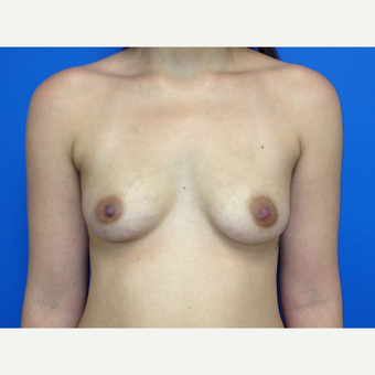 Breast Augmentation before 3743760