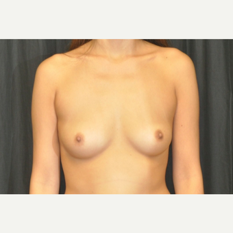 25-34 year old woman treated with Breast Augmentation before 3502286