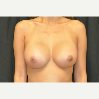 25-34 year old woman treated with Breast Augmentation after 3502286
