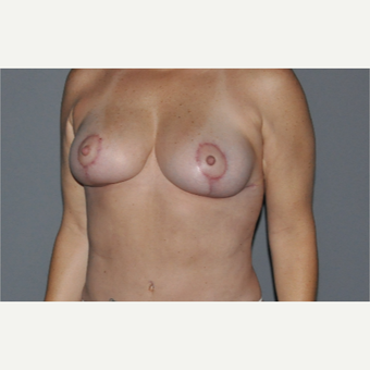 45-54 year old woman treated with Breast Lift after 2999719
