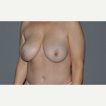 45-54 year old woman treated with Breast Lift before 2999719