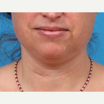 45-54 year old woman treated with Liposuction before 3227399