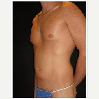 35-44 year old man treated with Liposuction before 3046614