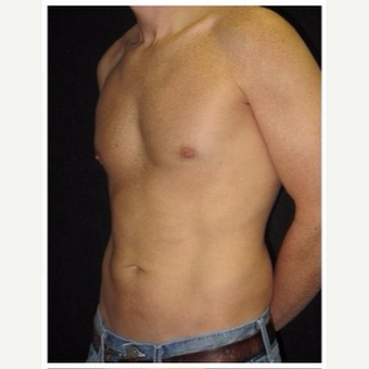 35-44 year old man treated with Liposuction after 3046614