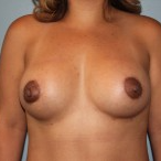 Natrelle Inspira Silicone Implants, 275 cc's after 3465034