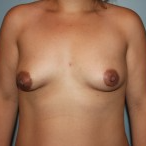 Natrelle Inspira Silicone Implants, 275 cc's before 3465034