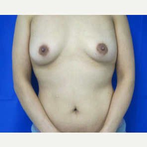 Breast Augmentation before 3054793