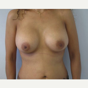Breast Augmentation after 3054793
