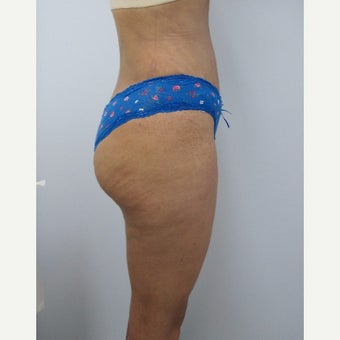 35-44 year old woman treated with Tummy Tuck and lipo after 2159577
