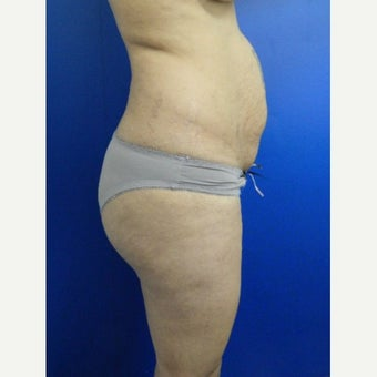 35-44 year old woman treated with Tummy Tuck and lipo before 2159577