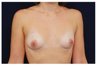 Breast Augmentation before 1230013