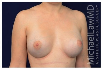 Breast Augmentation after 1230013