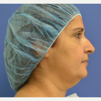 45-54 year old woman treated with Facelift before 3695176