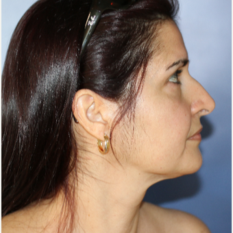 45-54 year old woman treated with Facelift after 3695176