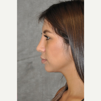 18-24 year old woman treated with Rhinoplasty after 3181406