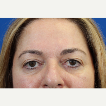 45-54 year old woman treated with upper blepharoplasty before 3215066