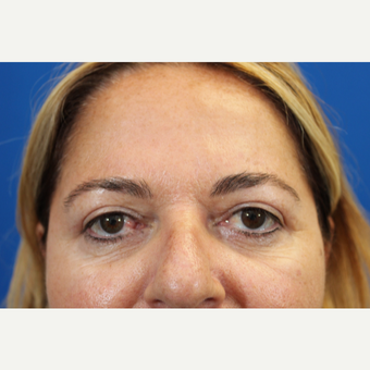 45-54 year old woman treated with upper blepharoplasty after 3215066