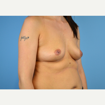 25-34 year old woman treated with Breast Implants before 3440101