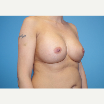 25-34 year old woman treated with Breast Implants after 3440101