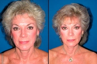 61 year old woman treated with Facelift before 3004822