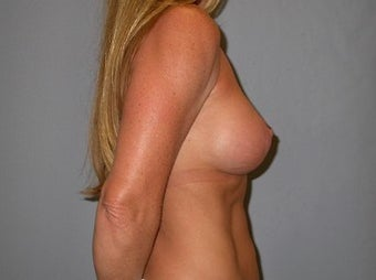 53 year old woman seeks improvement in the size and shape of her breasts after 1322779