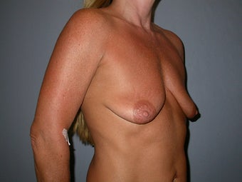 53 year old woman seeks improvement in the size and shape of her breasts 1322779