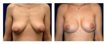 48 Year Old Female Breast Reconstruction Patient before 1161784
