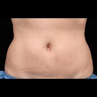 CoolSculpting after 1526590