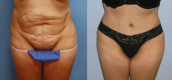 Tummy Tuck (Abdominoplasty) before 258040