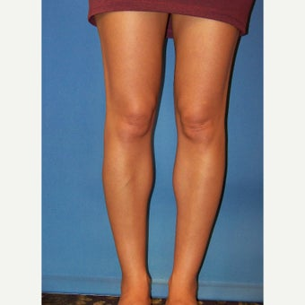 35-44 year old woman treated with Calf Implant after 2273470