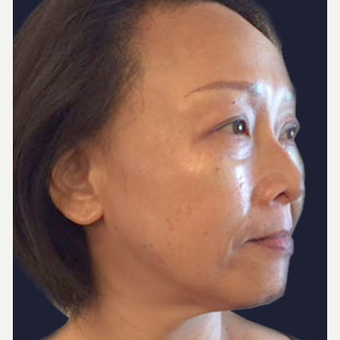 45-54 year old woman treated with Injectable Fillers after 3243246