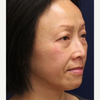 45-54 year old woman treated with Injectable Fillers before 3243246
