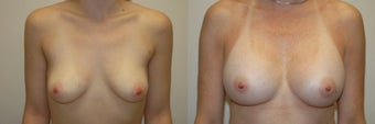 Breast Augmentation with Implants before 1271886