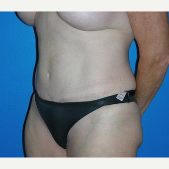 Tummy Tuck after 3208634