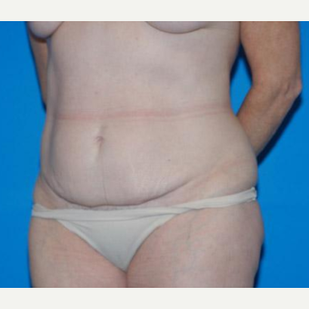 Tummy Tuck before 3208634