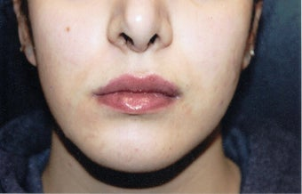 18-24 year old woman treated with Lip Implants after 1544034