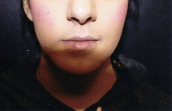 18-24 year old woman treated with Lip Implants before 1544034