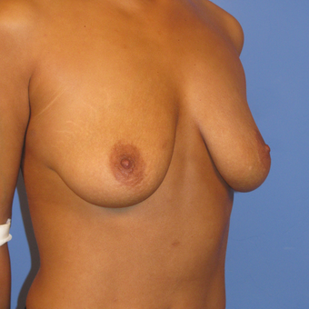 35-44 year old woman treated with Breast Lift with Implants before 2994788